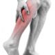 Fysiotherapie helpt bij klachten etalagebenen